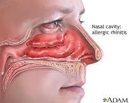 حساسية الأنف Allergic Rhinitis صحيفة روناهي